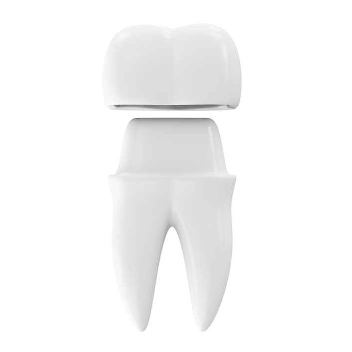 Same Day Crowns - Dental Services
