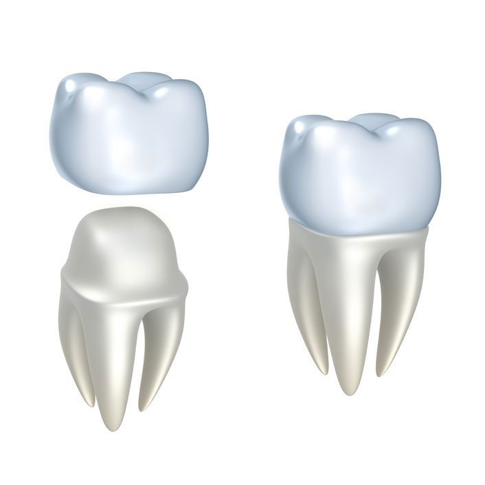 Crowns - Dental Services