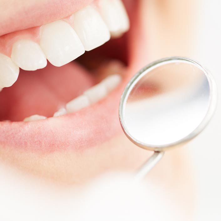 Dental Preventative Cleaning - Dental Services
