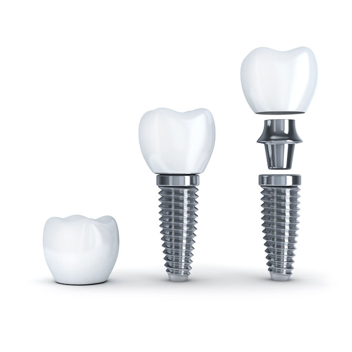 Dental Implants - Dental Services