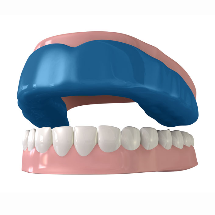Mouth Guard - Dental Services