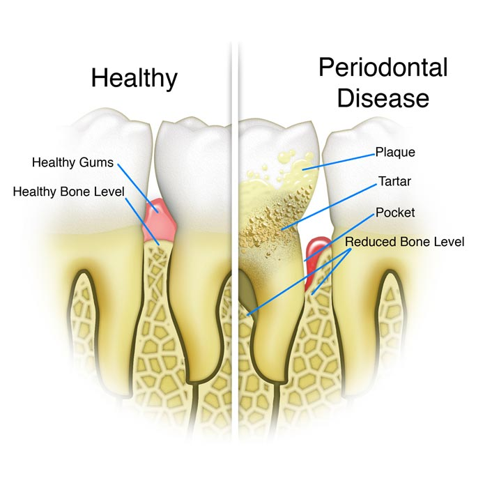 Periodontal Therapy - Dental Services