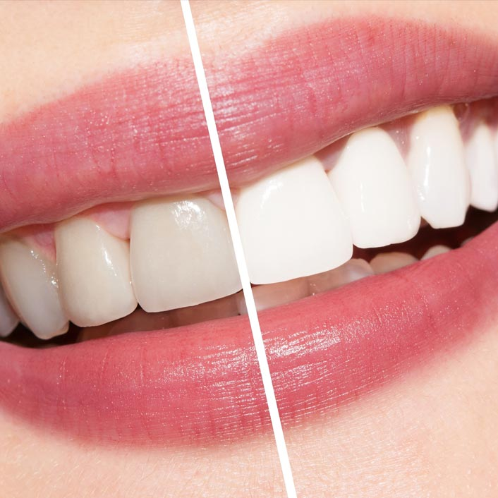 Teeth Whitening - Dental Services
